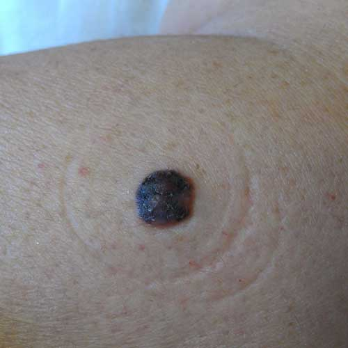 Skin Cancer Melanoma Signs And Symptoms Skin Cancer Images And