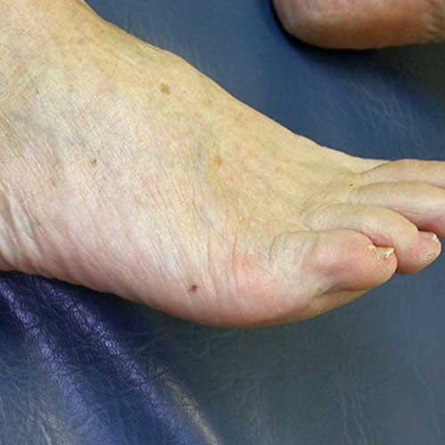Mole on foot meaning